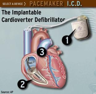 Defibrillator battery swap problems 'concerning' - Health ... |Defibrillator Surgery Risks